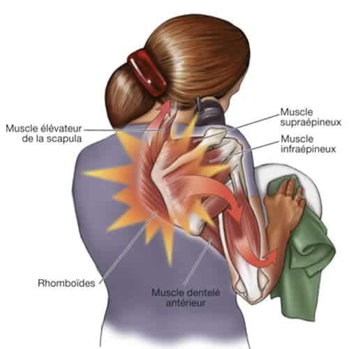 scapulocostal syndrome exercises douleurs epaule chirurgien epaule paris chirurgien nerfs paris maladie atteintes nerfs peripheriques docteur patrick houvet