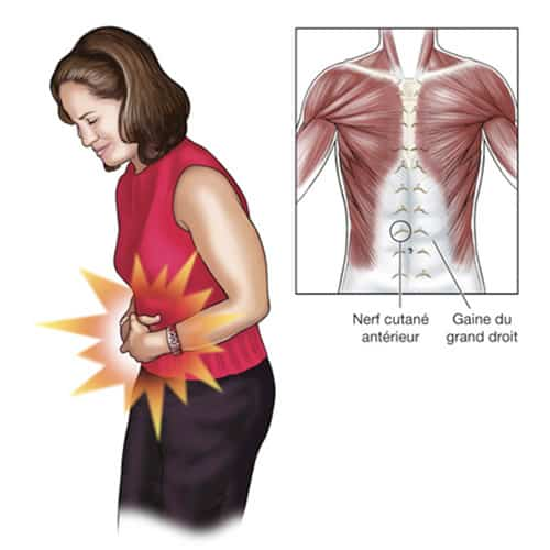syndrome costal douleurs aux cotes chirurgien epaule paris chirurgien nerfs paris maladie atteintes nerfs peripheriques docteur patrick houvet