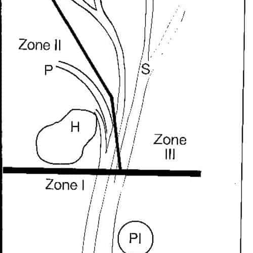 syndrome guyon nerf cubital poignet nerf cubital symptome chirurgien poignet paris chirurgien nerfs paris maladie atteintes nerfs peripheriques docteur patrick houvet