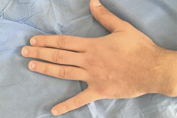 syndrome loge guyon nerf cubital poignet nerf cubital symptome chirurgien poignet paris chirurgien nerfs paris maladie atteintes nerfs peripheriques docteur patrick houvet