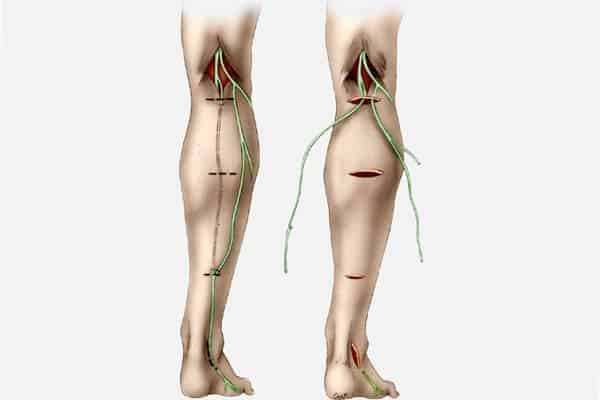 technique suture directe secondaire epaule main paris chirurgien nerfs paris maladie atteintes nerfs peripheriques docteur patrick houvet