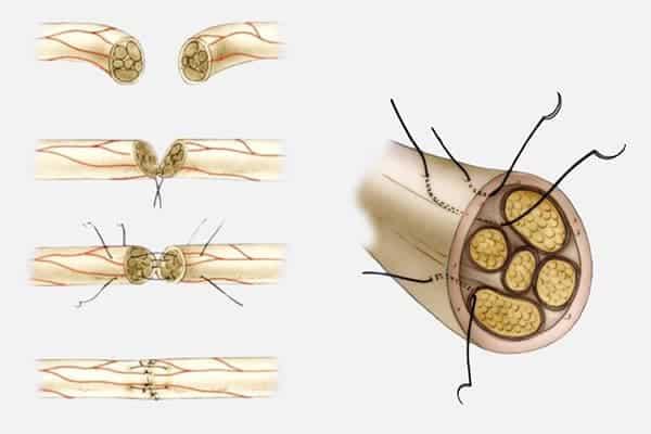 technique suture primaire en urgence epaule main paris chirurgien nerfs paris maladie atteintes nerfs peripheriques docteur patrick houvet