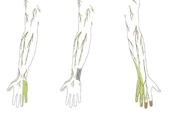 territoires sensitifs nerf ulnaire epaule main paris chirurgien nerfs paris maladie atteintes nerfs peripheriques docteur patrick houvet