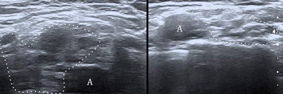 traitement plexite post radique plexite radique chirurgien cervicales paris chirurgien nerfs paris maladie atteintes nerfs peripheriques docteur patrick houvet