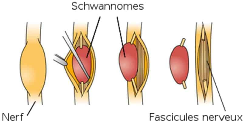 tumeur nerf tumeur systeme nerveux chirurgien paris chirurgien nerfs paris maladie atteintes nerfs peripheriques docteur patrick houvet