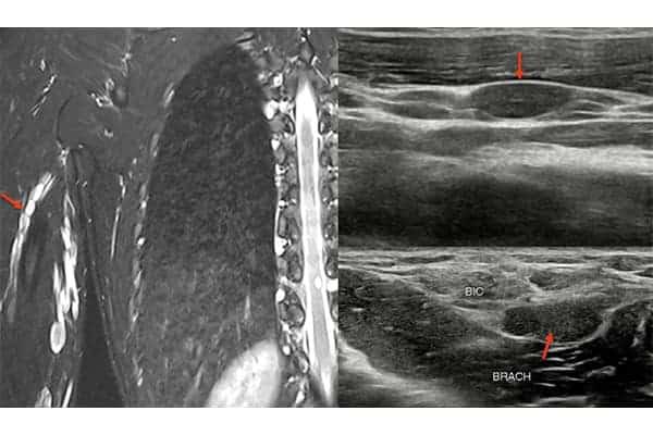 tumeur nerveuse symptomes tumeur nerveuse chirurgien paris chirurgien nerfs paris maladie atteintes nerfs peripheriques docteur patrick houvet