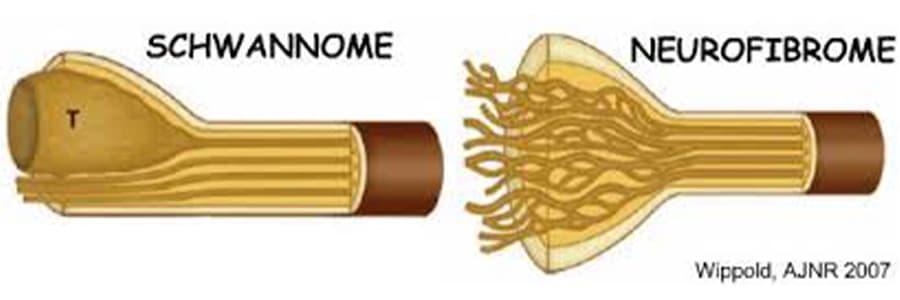 tumeur systeme nerveux tumeur des nerfs chirurgien paris chirurgien nerfs paris maladie atteintes nerfs peripheriques docteur patrick houvet