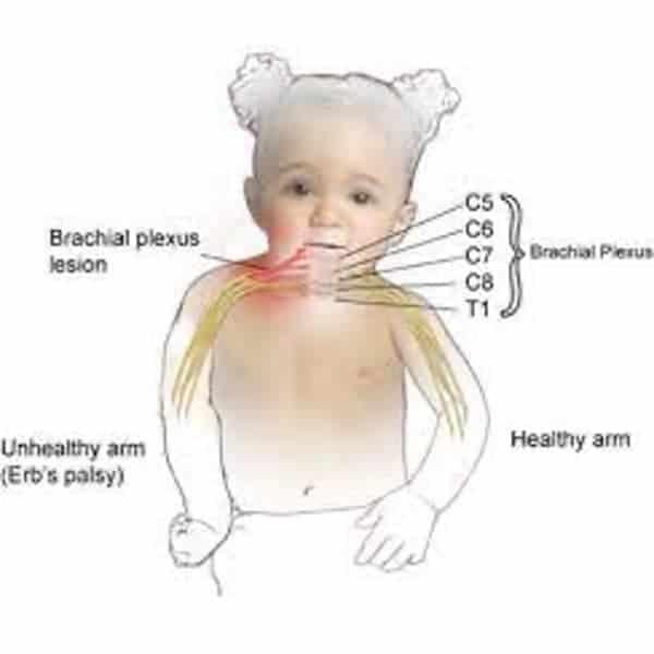 plexus brachial congenital bebe bras paralyse docteur houvet specialiste chirurgie nerfs paris chirurgien orthopediste