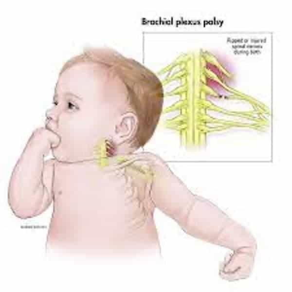plexus brachial congenital bebe bras paralyse dr patrick houvet specialiste chirurgie nerfs paris